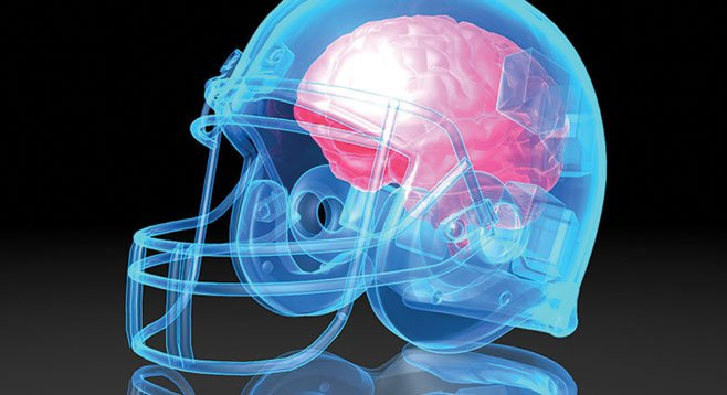 Concussion overhaul brewing in Australian sport