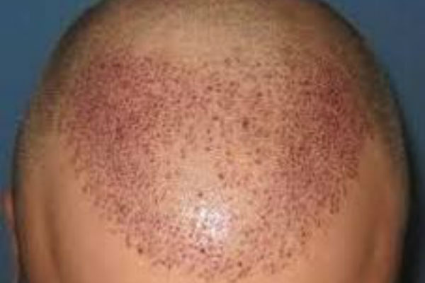 Article image for Help for your hair with Dr Paul Green