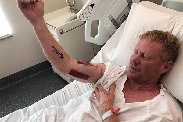 Shark attack victim has no hard feelings: 'It just reacted to me headbutting it'