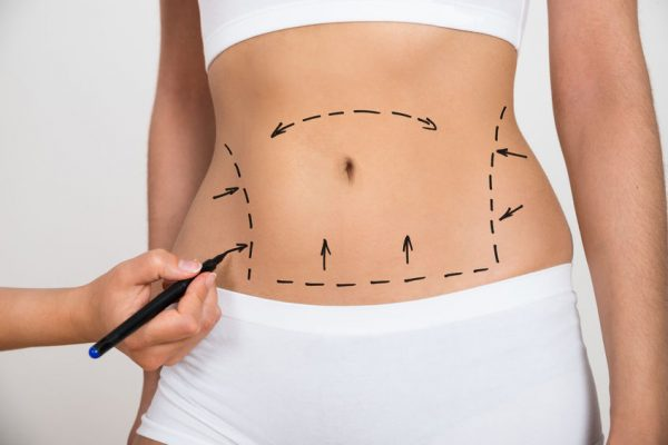 Plastic surgeries most likely to go wrong