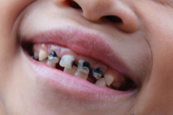 Too many children having a brush with tooth decay