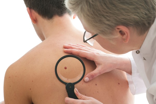 Australia has highest rate of invasive melanoma