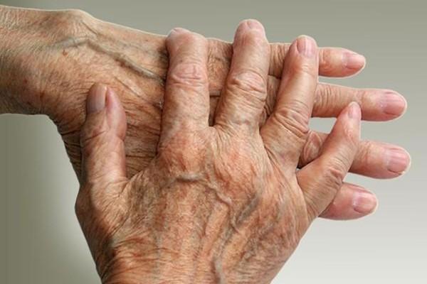 National Strategic Action Plan for Arthritis