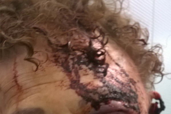 GRAPHIC WARNING   Grandmother's horrific injuries after being bashed by teenager