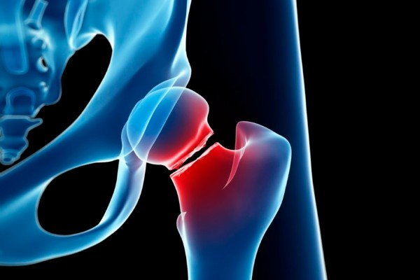 Exercising science to guard against bone fractures