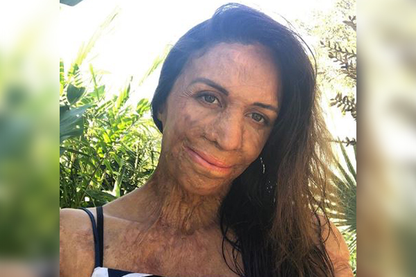 Article image for No bitter pills: Turia Pitt's dose of Kyndness for those in need