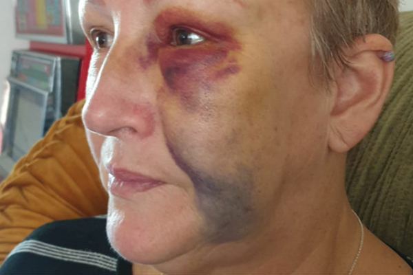 'Head-scratching' punishment for patient who attacked NSW nurse