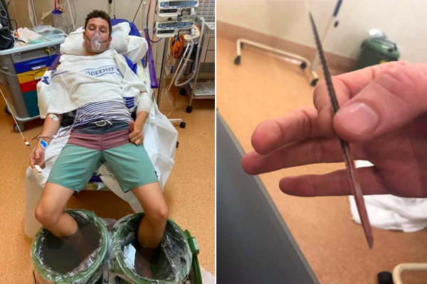 Article image for Teacher gets stingray barb lodged in his leg