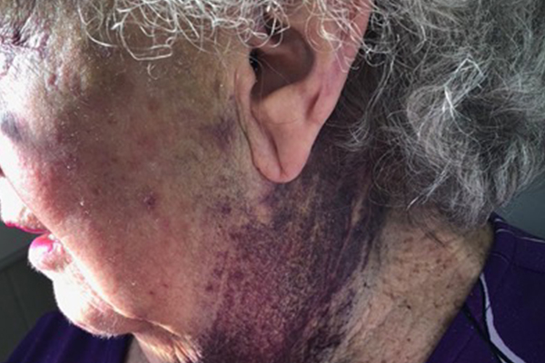 Article image for GRAPHIC IMAGES   Grandma sustains horror injuries during hospital visit