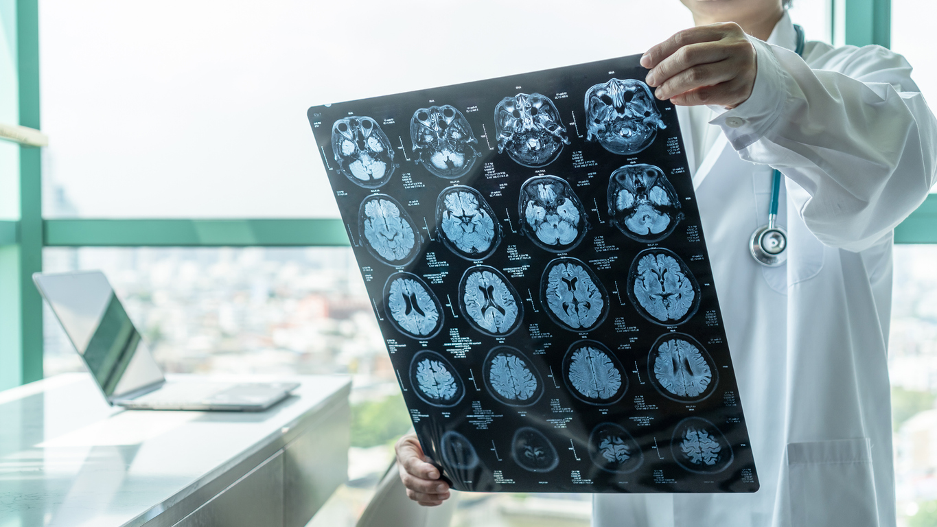Concussions extra toll on the young